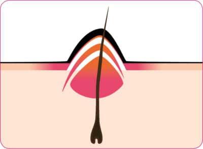 Zugsalbe gegen Haarbalgentzündung